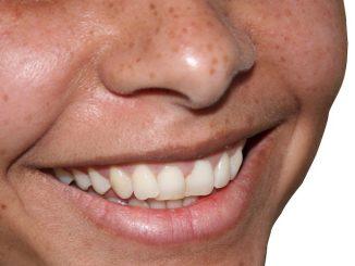 Zdrowe zęby i jama ustana